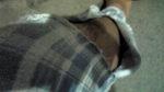 パジャマの破れ.jpg